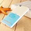 ����������� ����� ��� Xiaomi Redmi 3 ������������ 3D ���